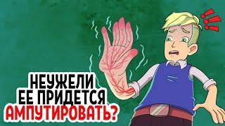Можно ли отлежать руку или ногу насовсем?