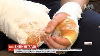 На Одещині від вибуху петарди 11-річному хлопцю пошматувало пальці на руках